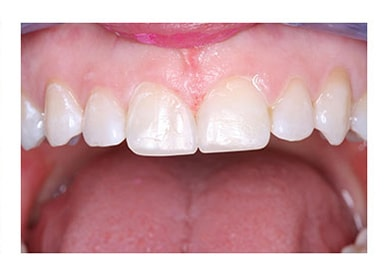 Bonding Close To Diastema