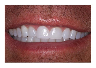 Veneers to Cover Chipped Tooth