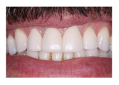 Veneers to Cover Exposed Roots