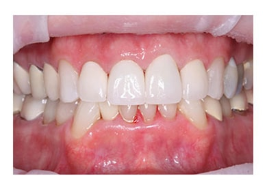 Veneers to Cover Receding Gums