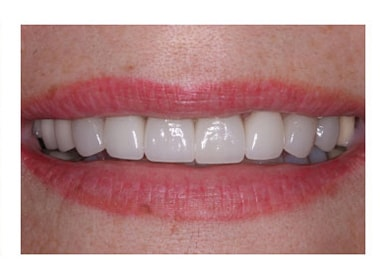 Cosmetic Dentist Yellowing Veneer Replacement