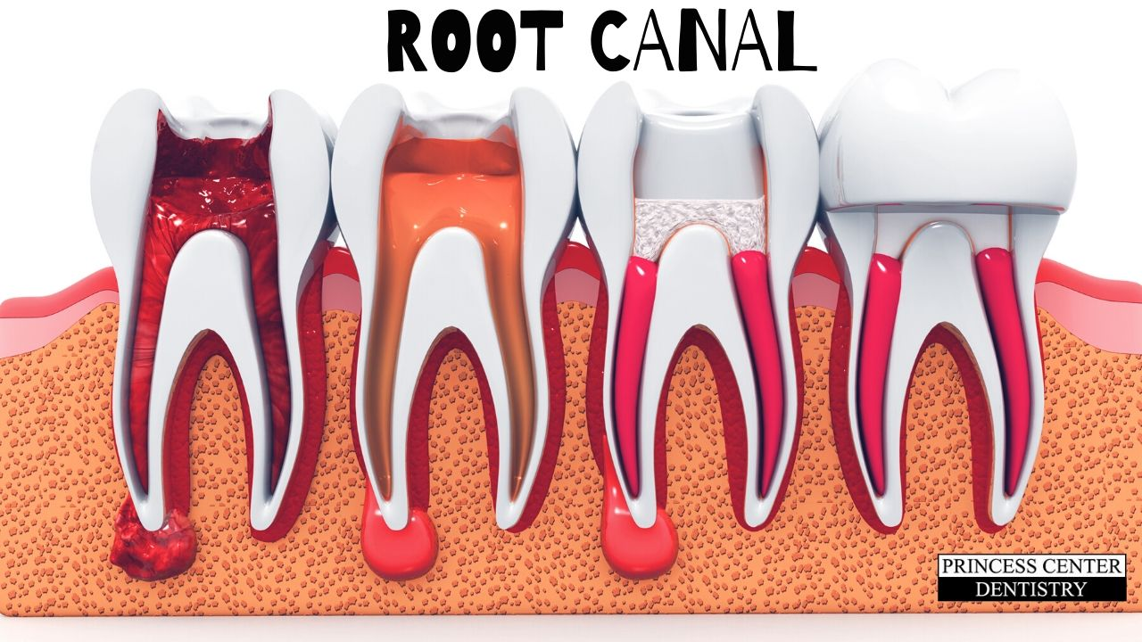 Teeth and roots