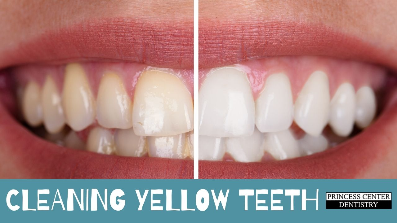 Comparison of yellow teeth and white teeth