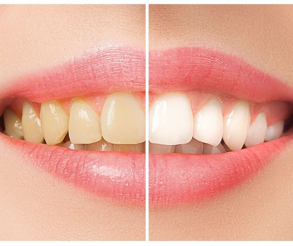 Teeth Whitening Princess Center Dentistry Scottsdale Az