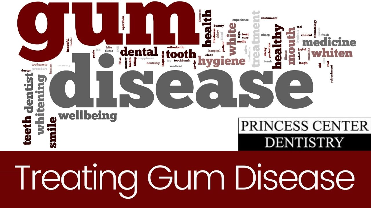 words related to gum disease